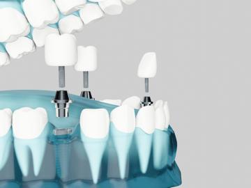 Reconstruccion dental que es cuando es necesaria